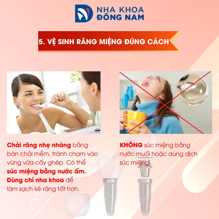 lưu ý 5 vệ sinh răng miệng đúng cách
