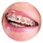 dịch vụ nha khoa niềng răng
