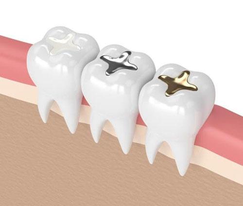 Composite, Amalgam, kim loại quý là những vật liệu phổ biến dùng để trám răng