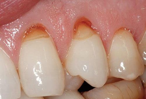 Mòn cổ chân răng