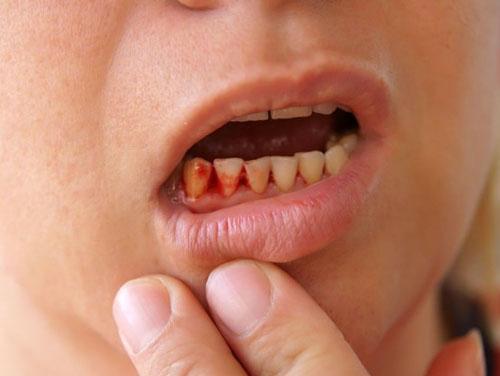 Chảy máu kéo dài sau khi nhổ răng