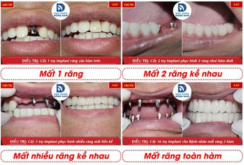 Phục hình răng mất bằng phương pháp cấy ghép Implant