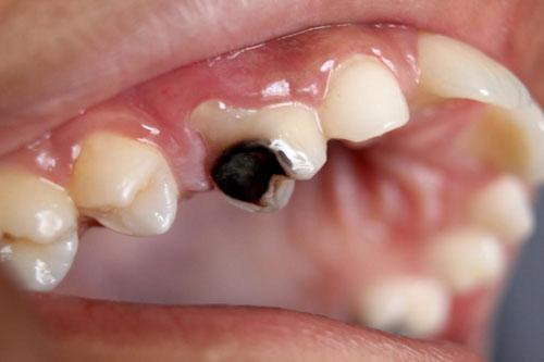 Răng bị sâu lớn ảnh hưởng đến tủy răng