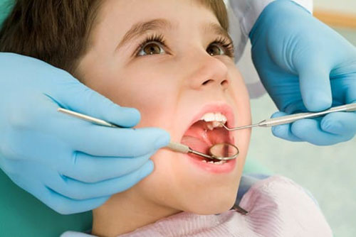 Trẻ em là đối tượng nguy cơ mắc sâu răng cao