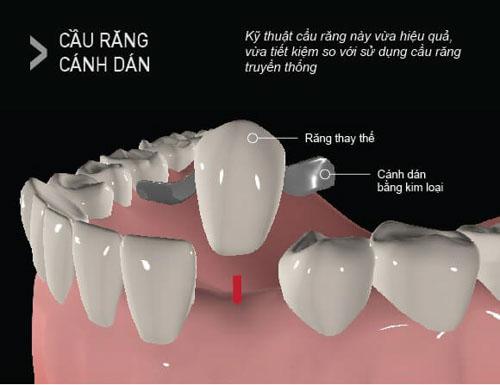 Cầu răng sứ cánh dán