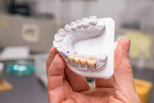 Cầu răng sứ sở hữu nhiều ưu điểm