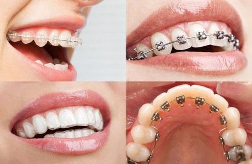 Chi phí niềng răng tùy thuộc vào từng loại hình điều trị