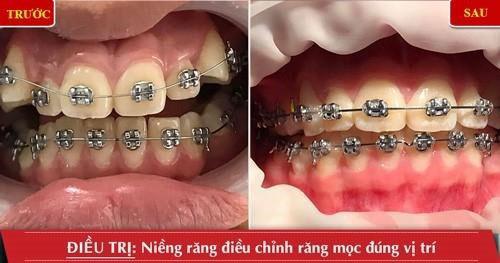 Niềng răng điều chỉnh răng mọc đúng vị trí