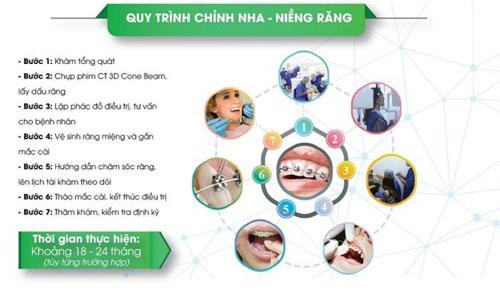 Quy trình niềng răng chỉnh nha
