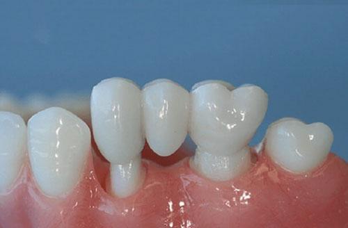 Trường hợp nào nên trồng răng sứ bắc cầu