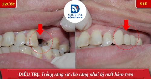 Trường hợp làm cầu 3 răng cho răng bị mất hàm trên