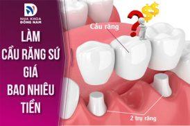 chi phí làm cầu răng sứ giá bao nhiêu tiền 4